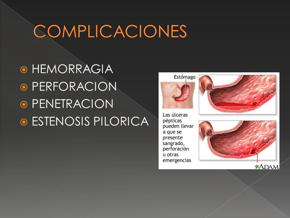 COMPLICACIONES HEMORRAGIA PERFORACION PENETRACION ESTENOSIS PILORICA