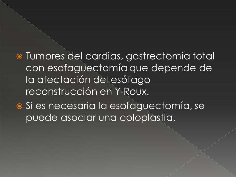Tumores del cardias, gastrectomía total con esofaguectomía que depende de la afectación del esófago reconstrucción en Y-Roux.