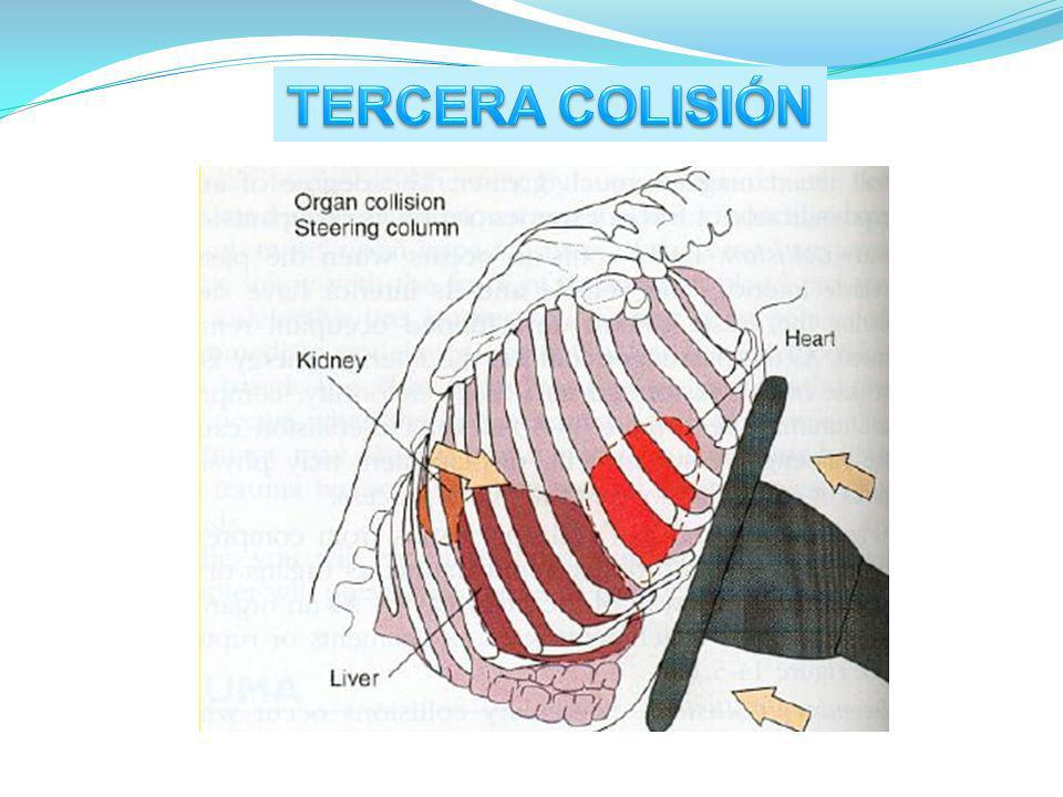 TERCERA COLISIÓN