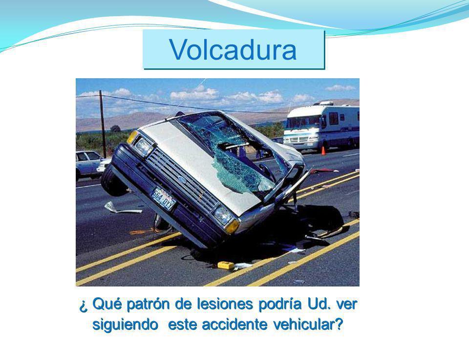 Volcadura ¿ Qué patrón de lesiones podría Ud. ver siguiendo este accidente vehicular