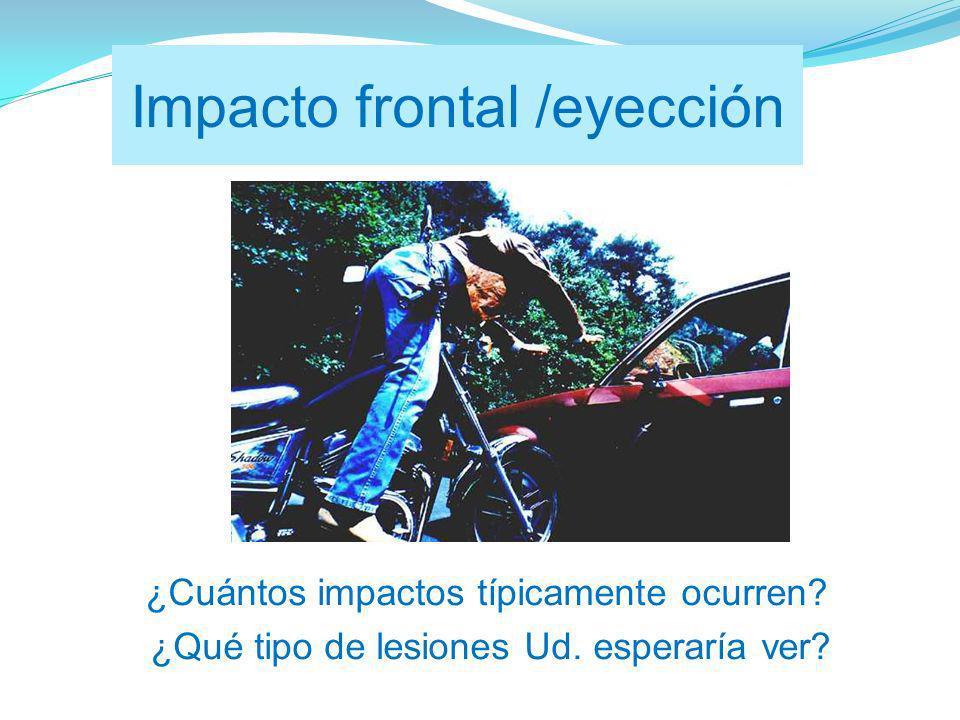 Impacto frontal /eyección