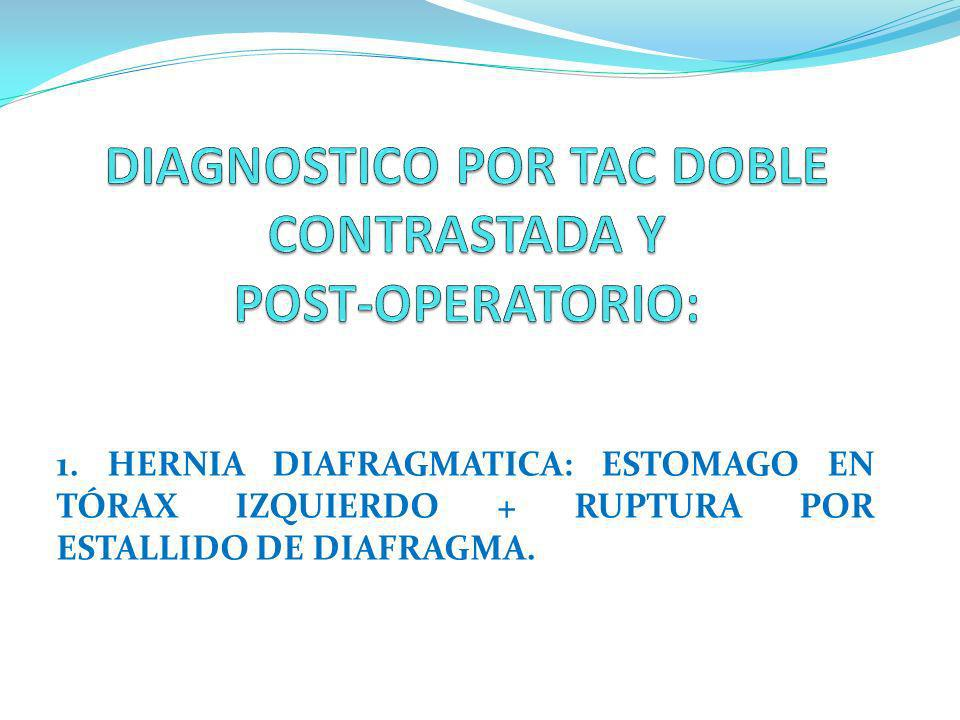 DIAGNOSTICO POR TAC DOBLE CONTRASTADA Y POST-OPERATORIO: