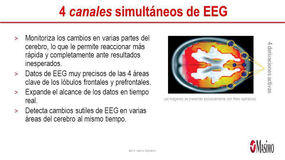4 canales simultáneos de EEG