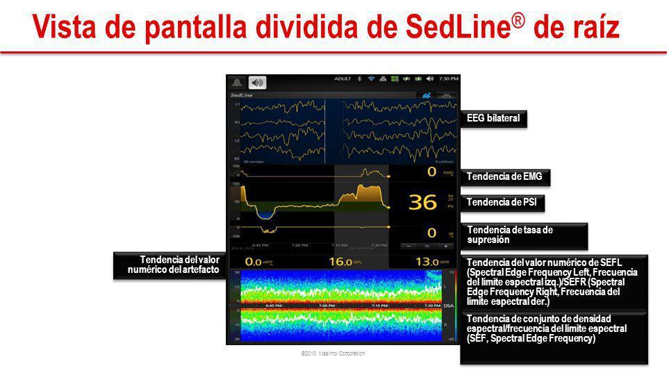 Vista de pantalla dividida de SedLine® de raíz