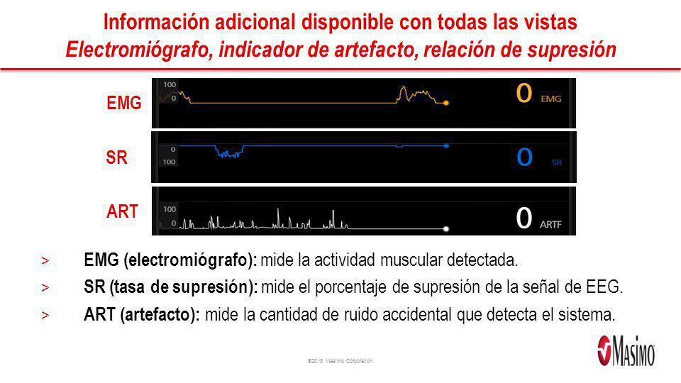 Información adicional disponible con todas las vistas Electromiógrafo, indicador de artefacto, relación de supresión
