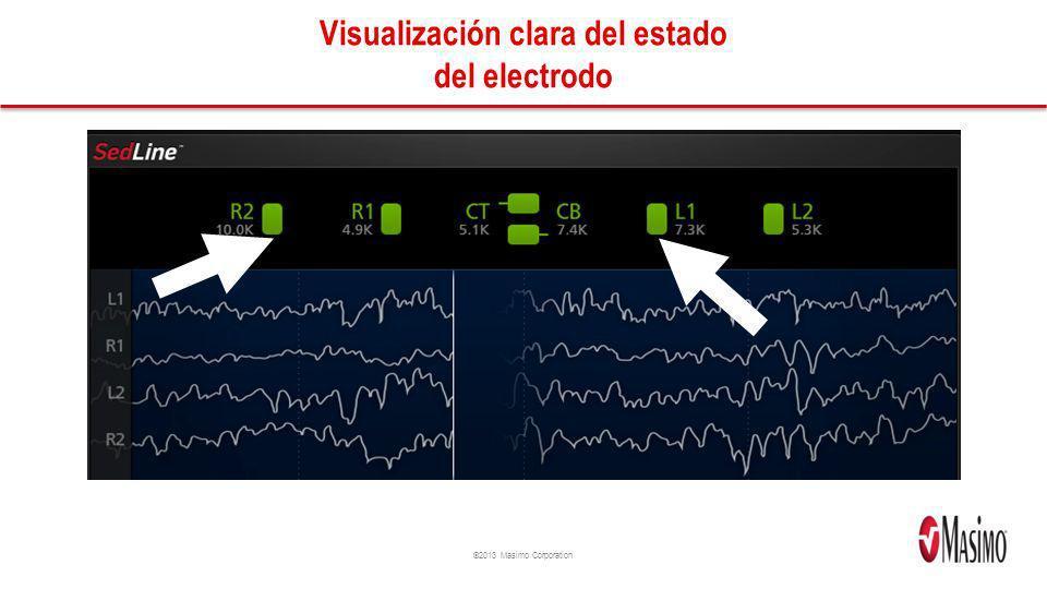 Visualización clara del estado del electrodo