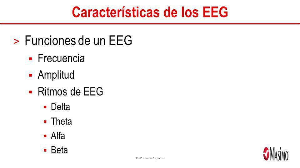 Características de los EEG