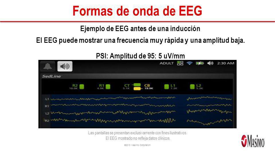 Formas de onda de EEG Ejemplo de EEG antes de una inducción