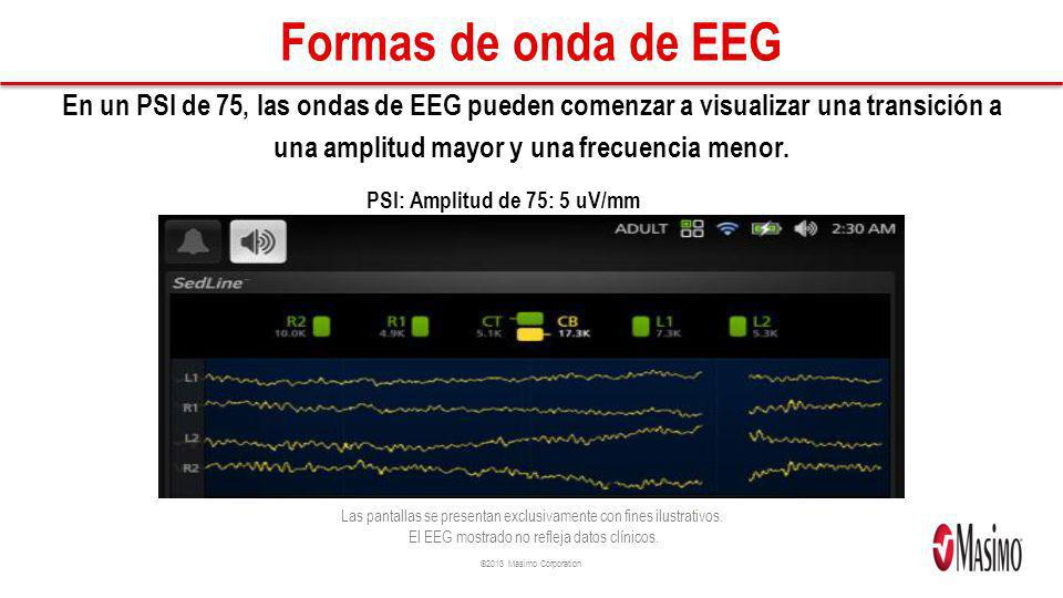PSI: Amplitud de 75: 5 uV/mm