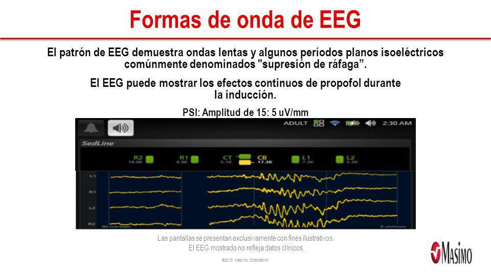 Formas de onda de EEG El patrón de EEG demuestra ondas lentas y algunos períodos planos isoeléctricos comúnmente denominados supresión de ráfaga .