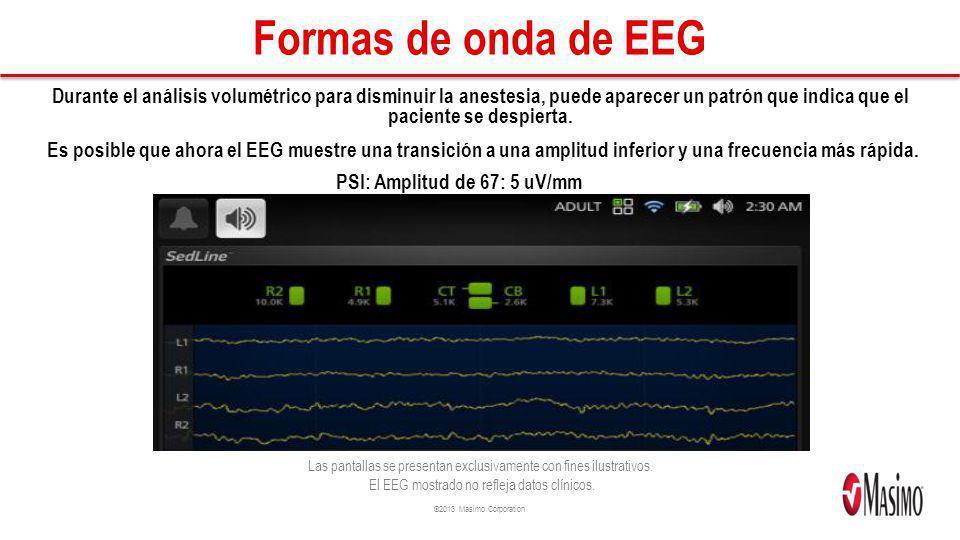 Formas de onda de EEG Durante el análisis volumétrico para disminuir la anestesia, puede aparecer un patrón que indica que el paciente se despierta.