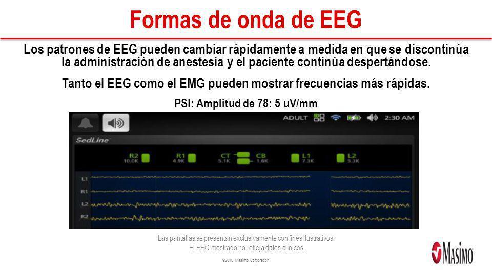 Tanto el EEG como el EMG pueden mostrar frecuencias más rápidas.