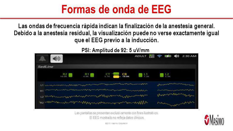 Formas de onda de EEG