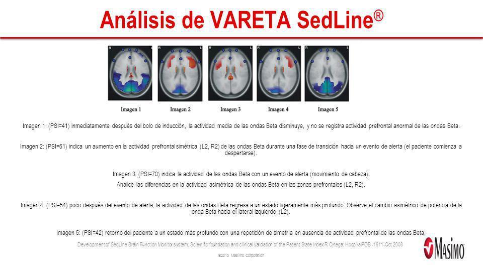Análisis de VARETA SedLine®