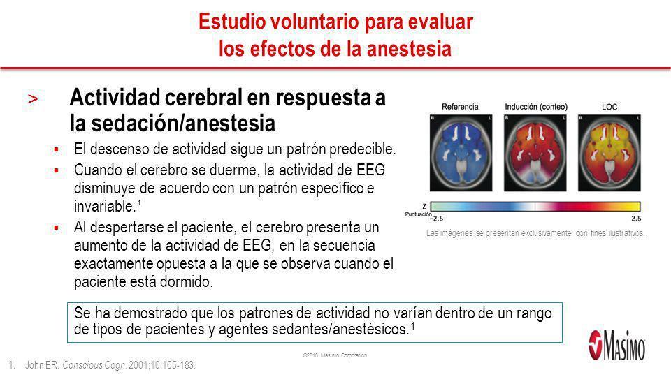 Estudio voluntario para evaluar los efectos de la anestesia