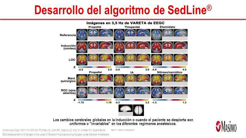 Desarrollo del algoritmo de SedLine®