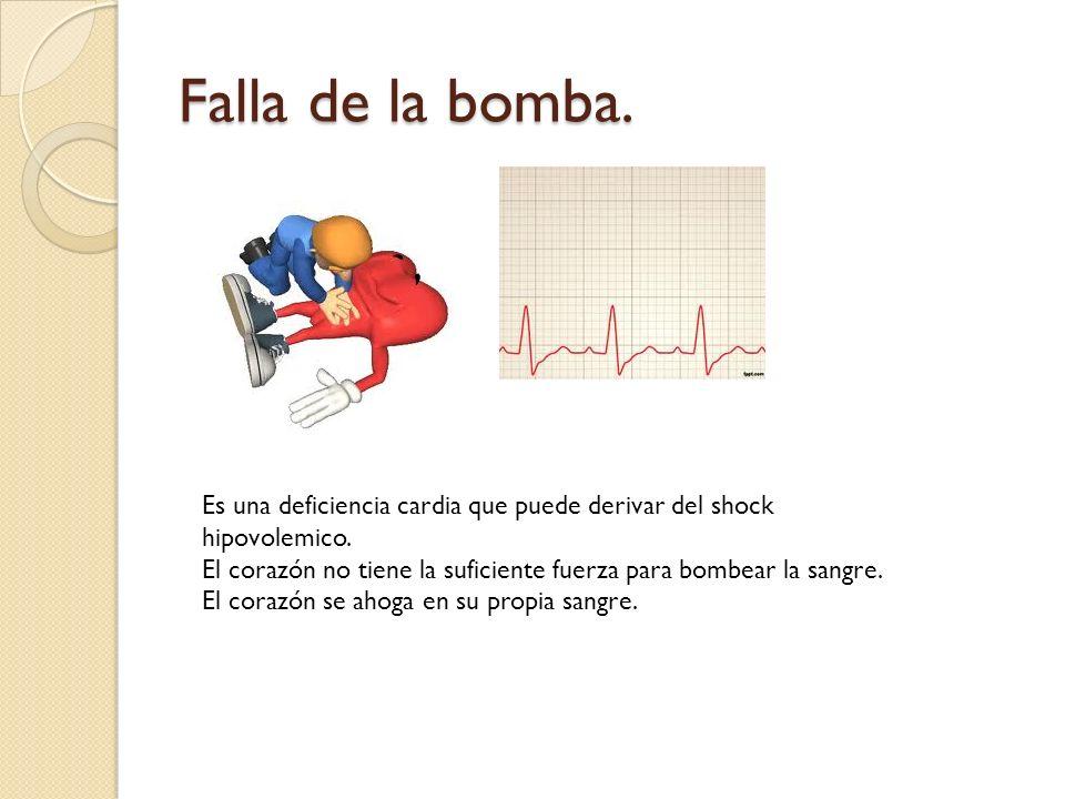 Falla de la bomba. Es una deficiencia cardia que puede derivar del shock hipovolemico.