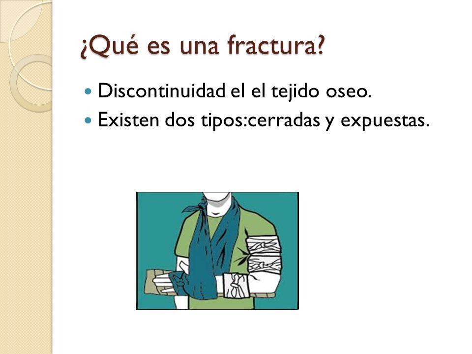 ¿Qué es una fractura Discontinuidad el el tejido oseo.