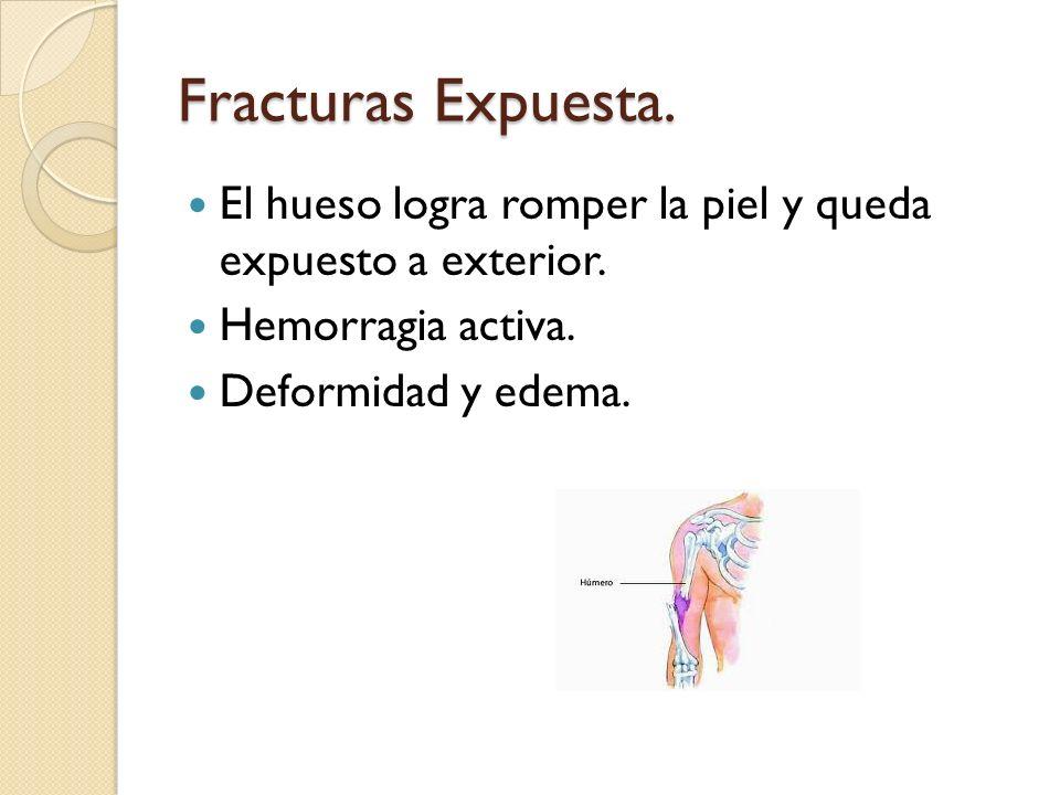 Fracturas Expuesta. El hueso logra romper la piel y queda expuesto a exterior. Hemorragia activa.