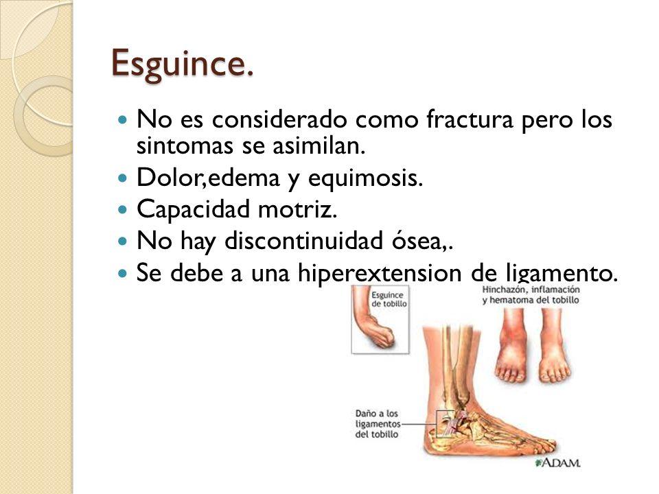 Esguince. No es considerado como fractura pero los sintomas se asimilan. Dolor,edema y equimosis.