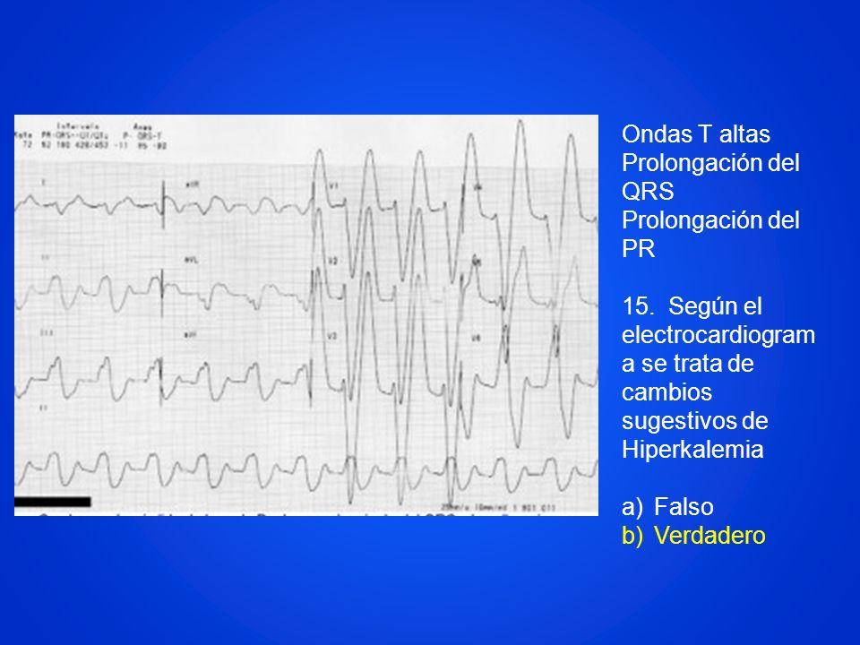 Ondas T altas Prolongación del QRS Prolongación del PR