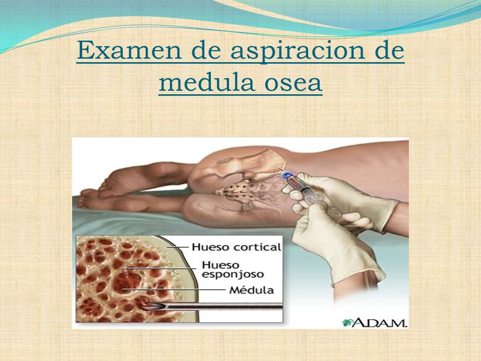 Examen de aspiracion de medula osea