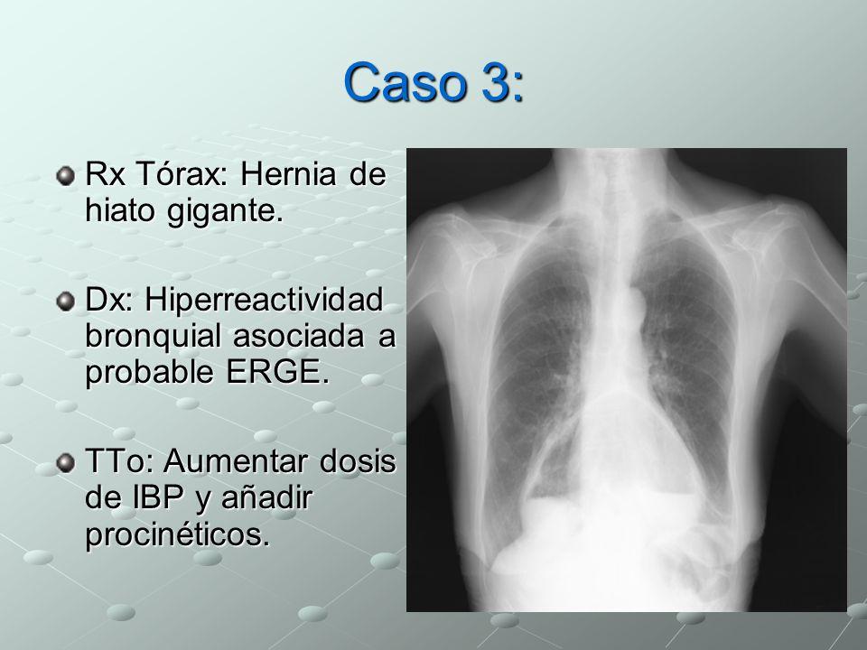 Caso 3: Rx Tórax: Hernia de hiato gigante.