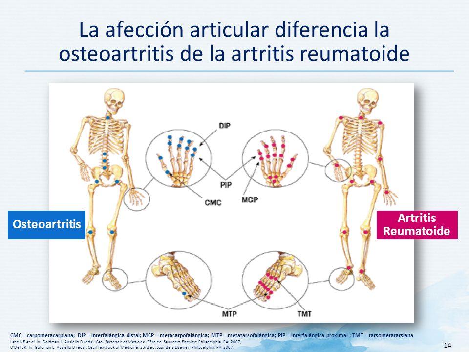 La afección articular diferencia la osteoartritis de la artritis reumatoide