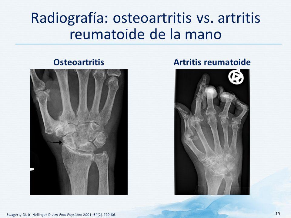 Radiografía: osteoartritis vs. artritis reumatoide de la mano