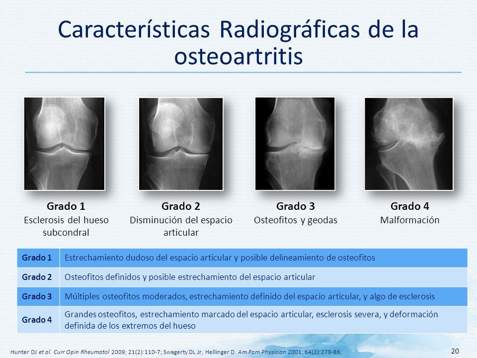 Características Radiográficas de la osteoartritis