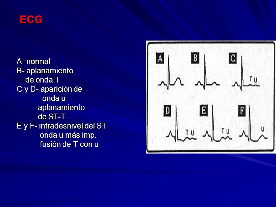 ECG A- normal B- aplanamiento de onda T C y D- aparición de onda u