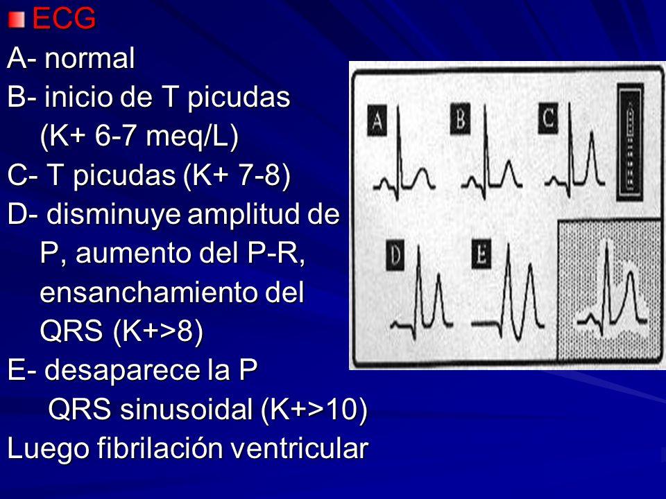 ECG A- normal. B- inicio de T picudas. (K+ 6-7 meq/L) C- T picudas (K+ 7-8) D- disminuye amplitud de.