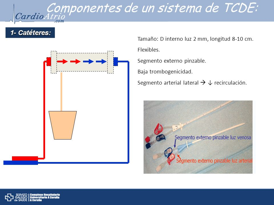 Componentes de un sistema de TCDE: