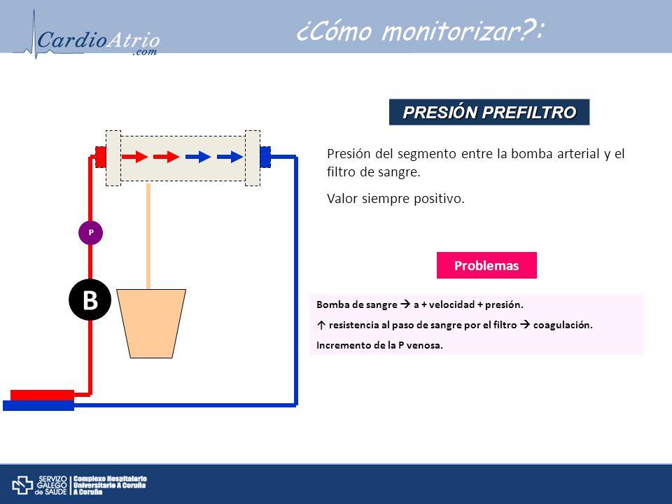 B ¿Cómo monitorizar : PRESIÓN PREFILTRO