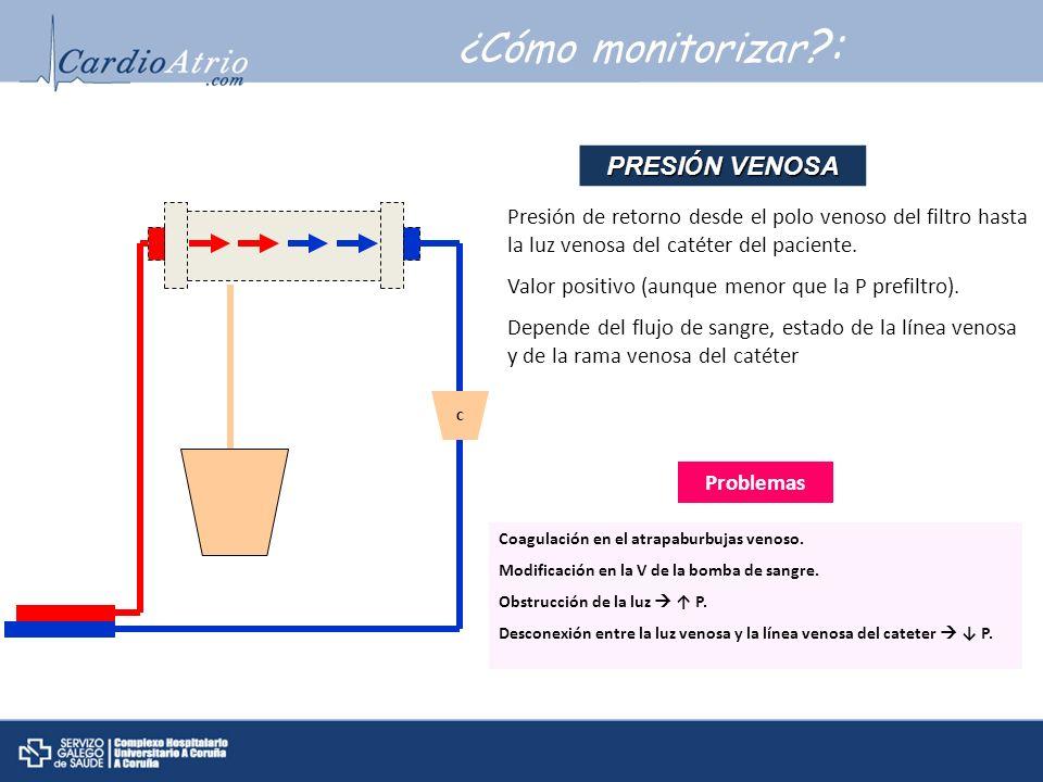 ¿Cómo monitorizar : PRESIÓN VENOSA