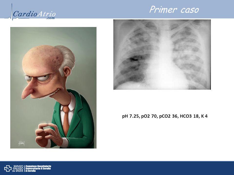 Primer caso pH 7.25, pO2 70, pCO2 36, HCO3 18, K 4