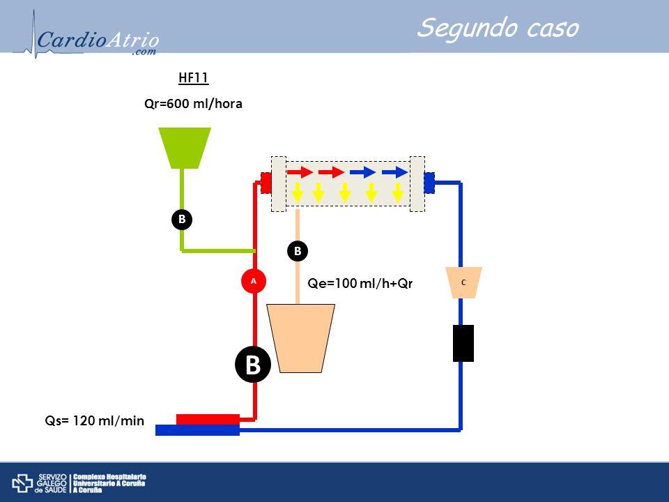 B Segundo caso Qr=600 ml/hora HF11 B B Qe=100 ml/h+Qr Qs= 120 ml/min