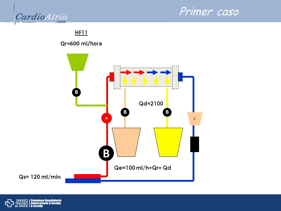 B Primer caso Qr=600 ml/hora HF11 B Qd=2100 B B Qe=100 ml/h+Qr+ Qd