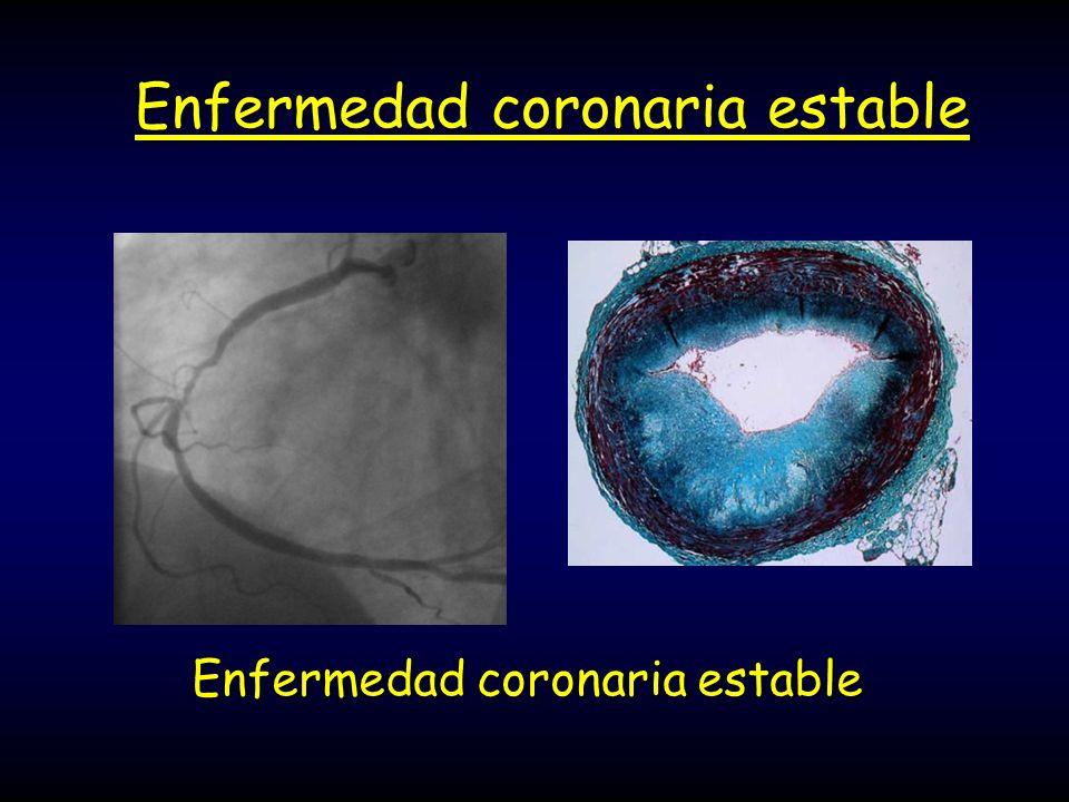 Enfermedad coronaria estable