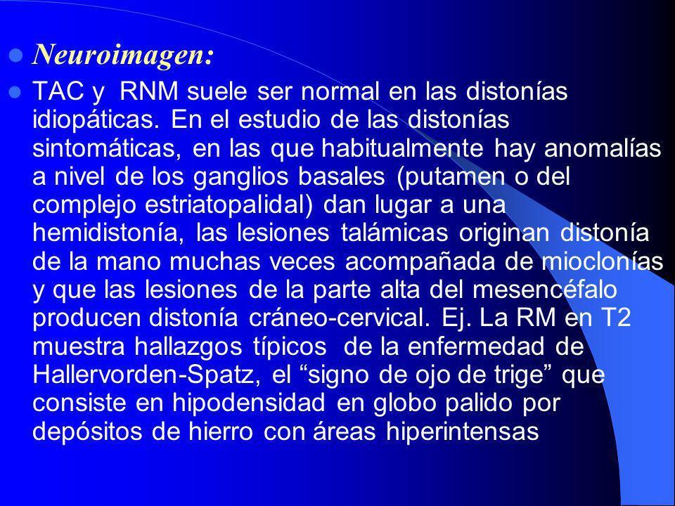 Neuroimagen: