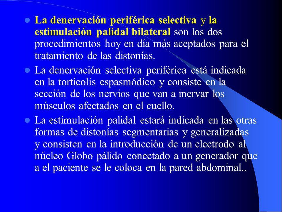La denervación periférica selectiva y la estimulación palidal bilateral son los dos procedimientos hoy en día más aceptados para el tratamiento de las distonías.