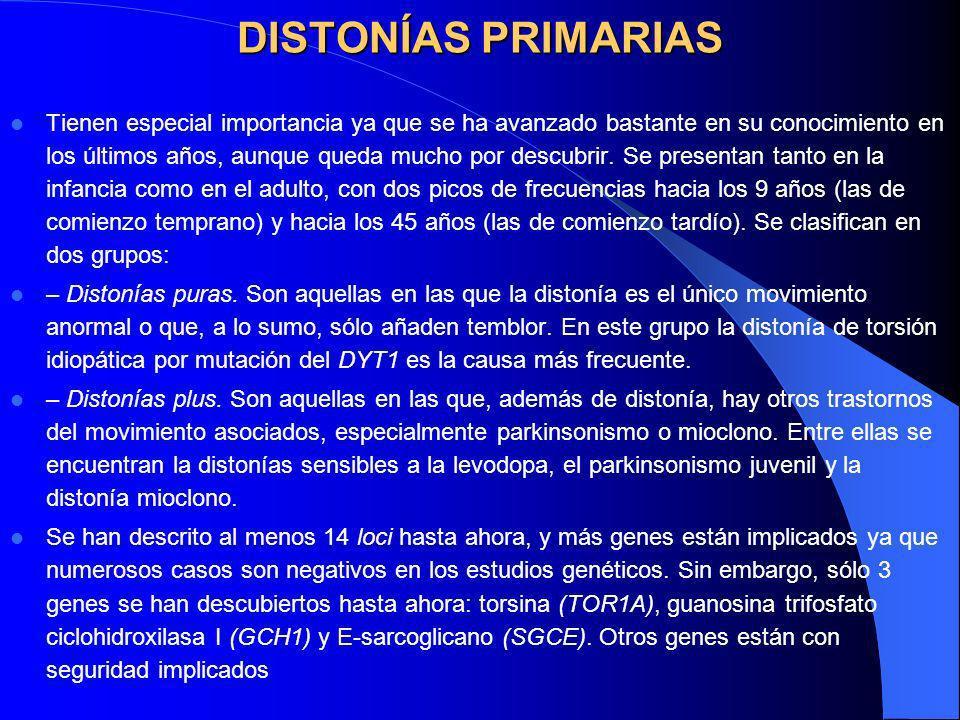 DISTONÍAS PRIMARIAS