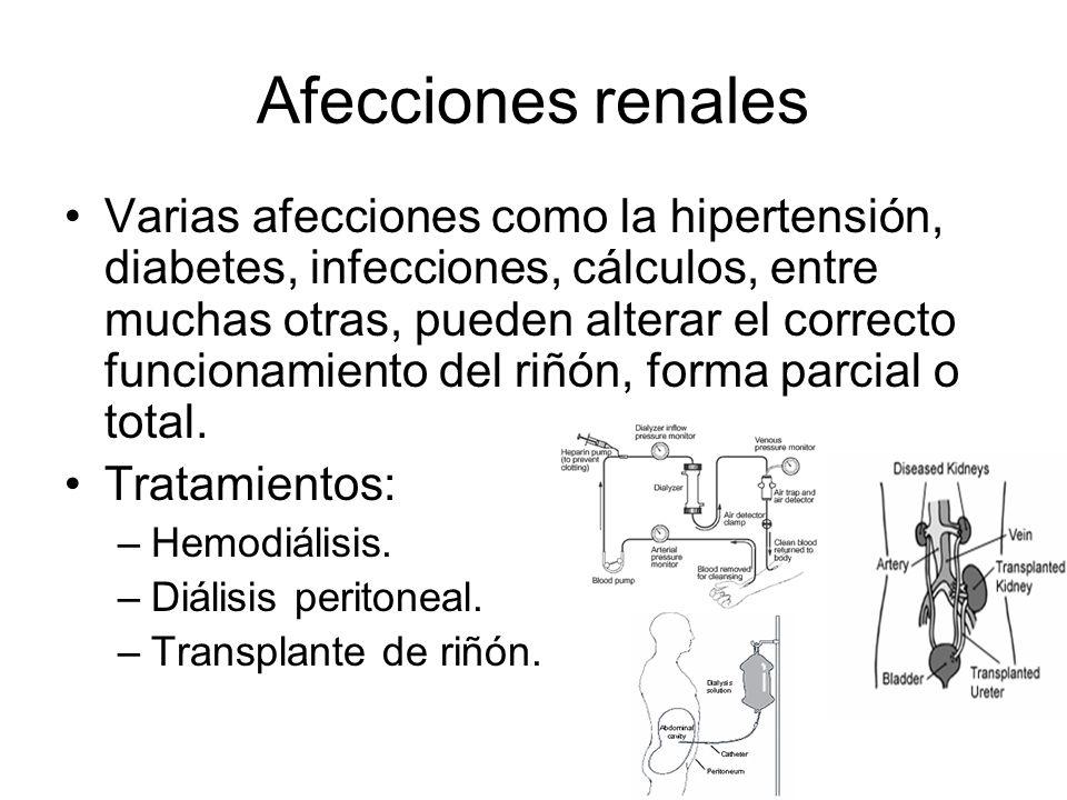 Afecciones renales