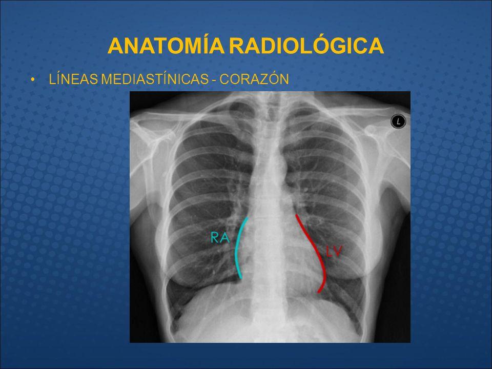 Encantador Uretra Anatomía De Radiología Cresta - Imágenes de ...