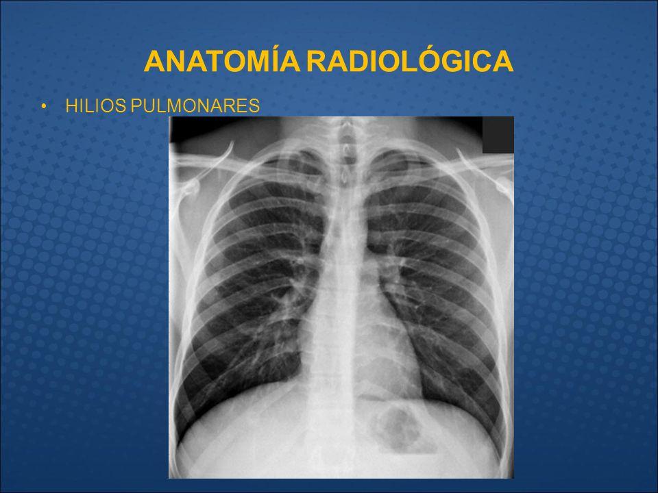 Excepcional Carina Anatomía Pulmonar Ideas - Imágenes de Anatomía ...