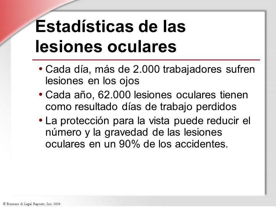 Estadísticas de las lesiones oculares