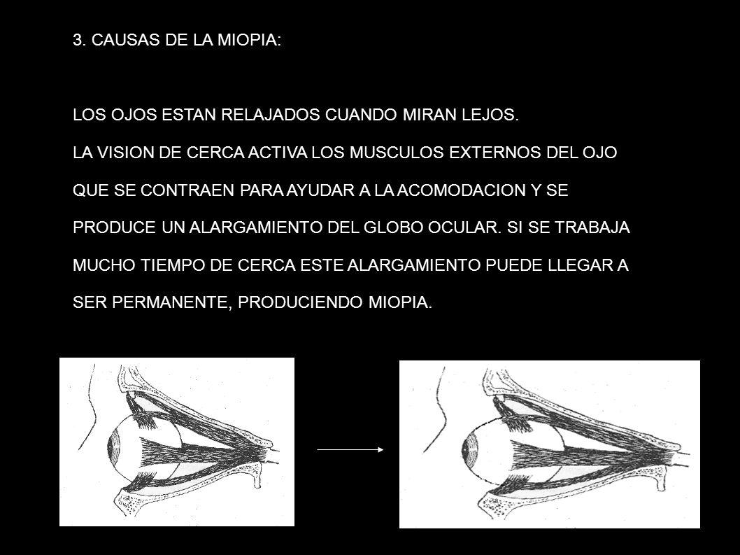 3. CAUSAS DE LA MIOPIA: LOS OJOS ESTAN RELAJADOS CUANDO MIRAN LEJOS. LA VISION DE CERCA ACTIVA LOS MUSCULOS EXTERNOS DEL OJO.