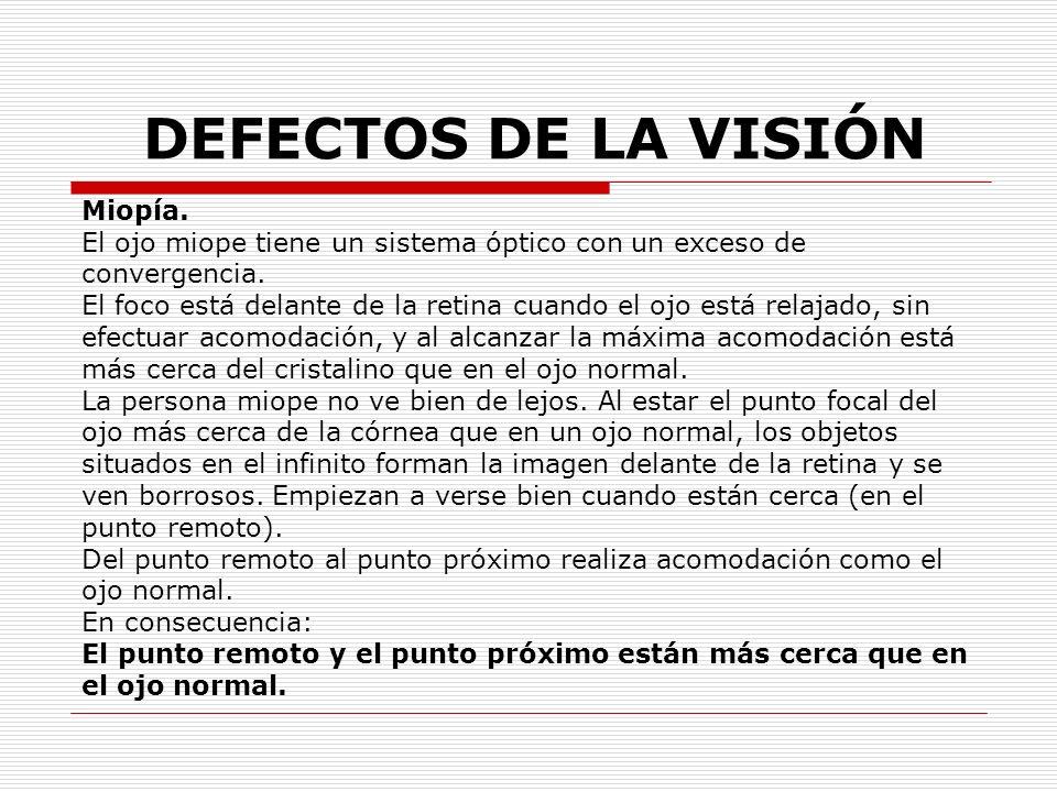 DEFECTOS DE LA VISIÓN Miopía.