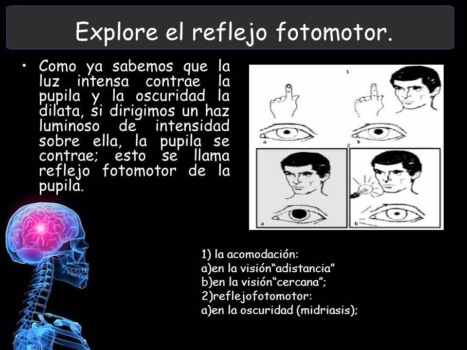 Explore el reflejo fotomotor.
