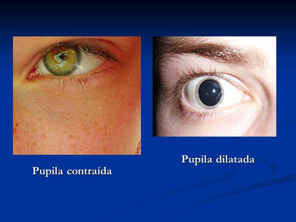 Pupila dilatada Pupila contraída